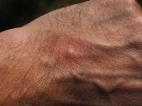 掌跖脓疱型牛皮癣的病理过程